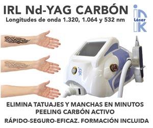 IRL Nd-Yag Carbón. Elimina tatuajes y manchas en minutos