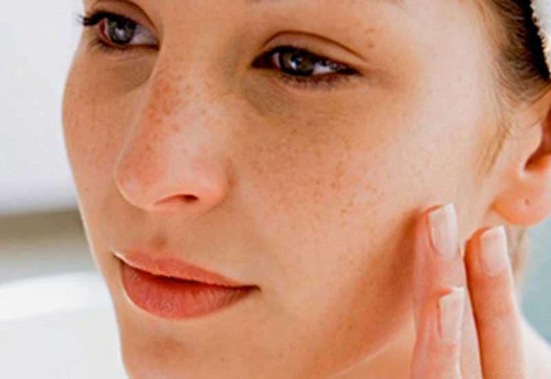 recuperar la piel después del verano