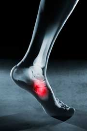 A cirurgia Cinderela ou adequar os pés aos sapatos