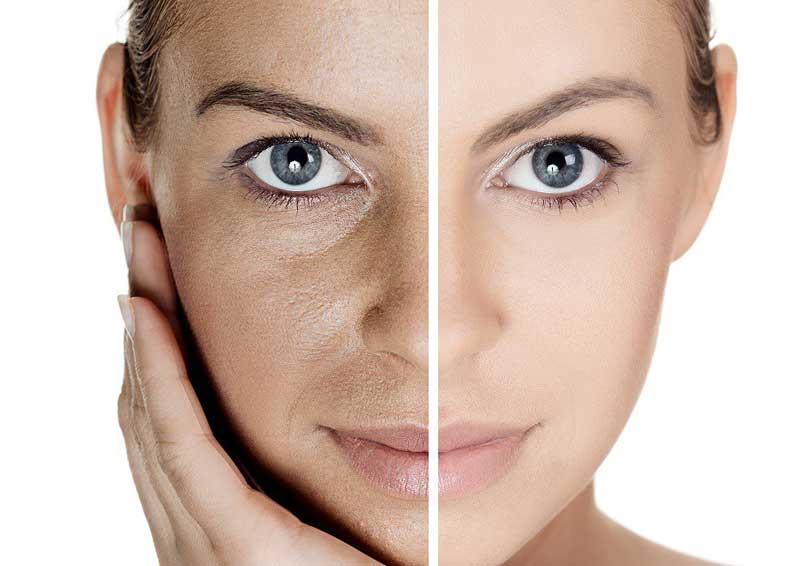 Nuovapelle, tecnología única para el cuidado de la piel