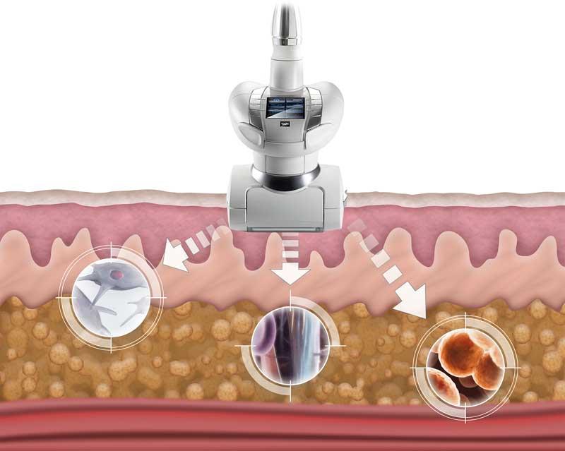 Las claves de la activación celular de LPG