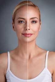 Medicina regenerativa, nuevas técnicas aplicadas a la belleza
