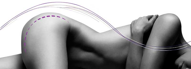 Alma Lasers Medica dá a conhecer Accent Prime, o último em remodelação corporal e facial