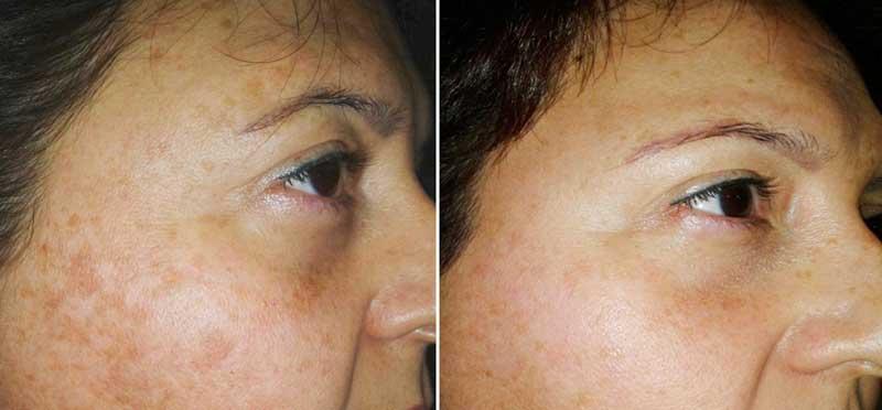 Nuevo tratamiento IR Nd-YAG carbón para manchas y rejuvenecimiento de la piel