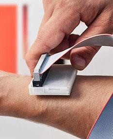 The sKan, um sistema que ajuda a detetar o cancro de pele