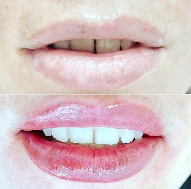 dermopigmentación en labios