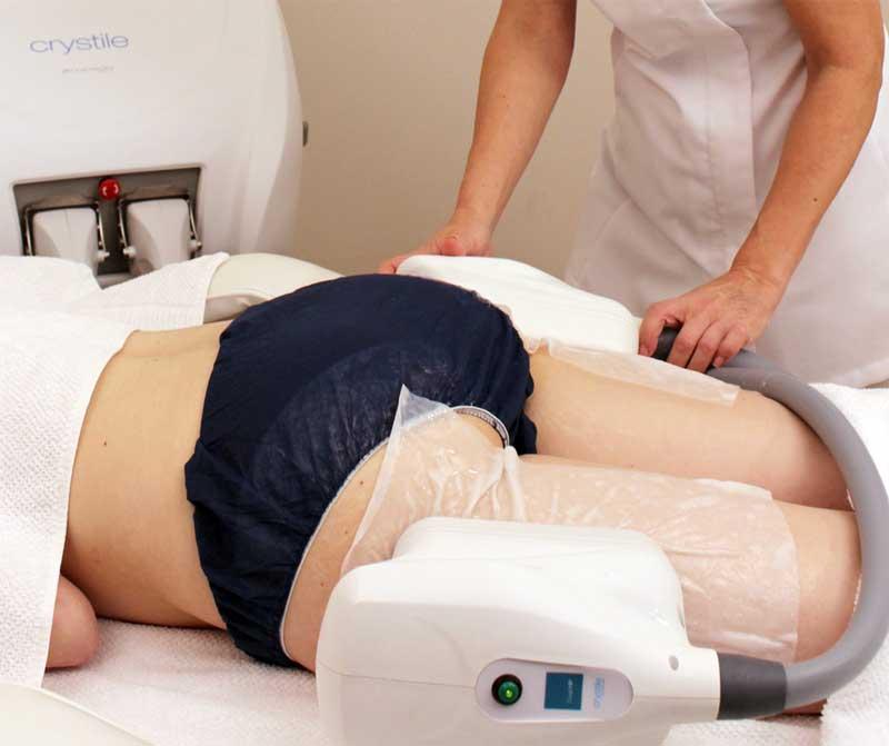 cocoon medical - crystile advanced crioadipolisis eliminacion grasa localizada tratamiento