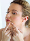 La vacuna contra el acné, a punto de 'quitar el grano'