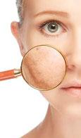 La importancia de saber identificar las manchas de la piel
