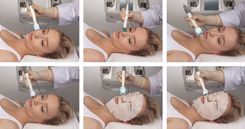 ProFacial - Belium Medical