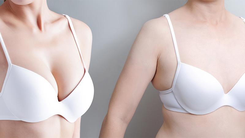 cirurgia de redaccional de mamas la tercera mas demandada en españa