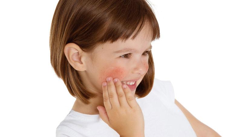 Laboratorios Babé - Pieles atópicas infantiles