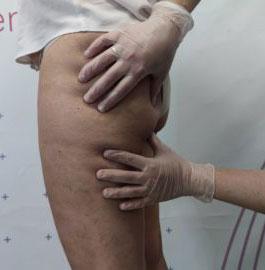 Estetiplan - Curso de diagnóstico corporal