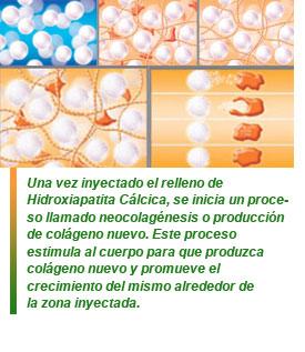 Relleno de hidroxiapatita cálcica - Hedonai