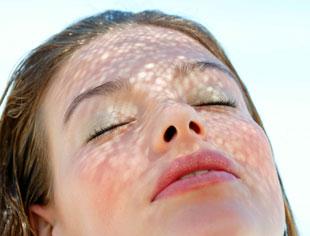 Tratar las manchas solares despu�s del verano.
