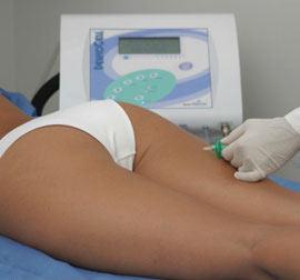 tratamiento de carboxiterapia