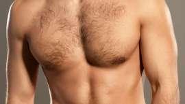 La ginecomastia es un aumento del tejido glandular mamario, que hay que diferenciar claramente del aumento de tamaño provocado por acumulación de tejido graso en la zona debido a incrementos de peso