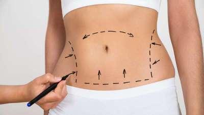 Diez respuestas sobre la liposucci�n