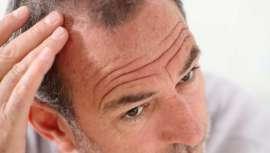 Alopecia es el término científico que define la caída patológica del cabello. Sin embargo, puede existir una caída temporal y esporádica, sin que haya patología
