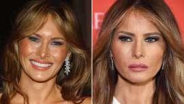 Donald Trump se proclama presidente de los Estados Unidos pero quien acapara todos los focos es su actual mujer, Melania Trump, exmodelo eslovaca. El doctor Fabio Vieira analiza con minuciosidad los cambios estéticos de la nueva primera dama