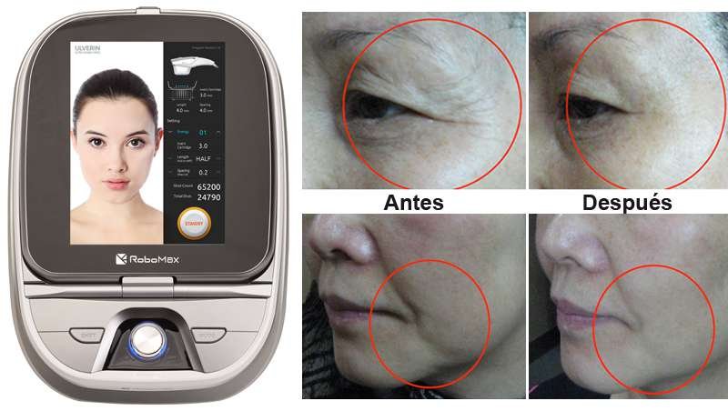 Ulverin, nuevo equipo HIFU para regenerar y revitalizar la piel