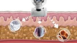 Los cabezales del tratamiento patentado de LPG, de la técnica endermologie, estimulan suavemente la piel para reactivar de forma natural la actividad celular latente, sin dolor y sin efectos secundarios