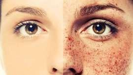 Entre las peticiones más populares en los gabinetes de  dermatología estética se encuentra la de acabar con el melasma. El ácido tranexámico podría ser la solución definitiva para combatir las manchas más rebeldes y extendidas