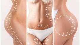 La cavitación es un tratamiento de estética consistente en aplicar ultrasonidos en diferentes zonas del cuerpo para eliminar acúmulos de grasa localizada. Repasamos a fondo esta avanzada técnica y la última aparatología del mercado