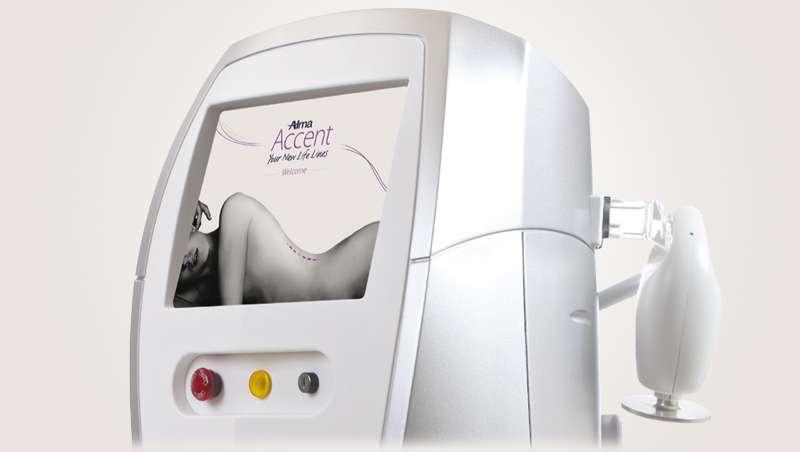 Alma Lasers Medica da a conocer Accent Prime, lo último en remodelación corporal y facial