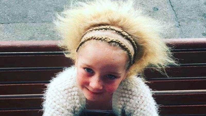 Famosa en Instagram gracias al síndrome del pelo impeinable