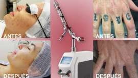 Med.Apolo aumenta su presencia en centros dermatológicos con el láser óptico, avalado por pacientes de 60 países con resultados altamente satisfactorios