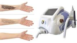 El tratamiento láser de carbón activo es un tratamiento novedoso que incide en un peeling, higiene y rejuvenecimiento de la piel