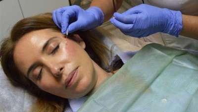 Clínica Orel apuesta por los implantes de hilos de suspensión