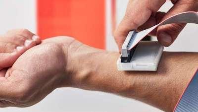 The sKan, sistema que ayuda a detectar el cáncer de piel