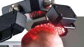 Más del 30% de la población padece pérdida de cabello. FCC Hair, sistema único de láser, productos a la vanguardia y cosmética capilar, se convierte en un servicio revolucionario que suma clientes y genera beneficios en una curva ascendente