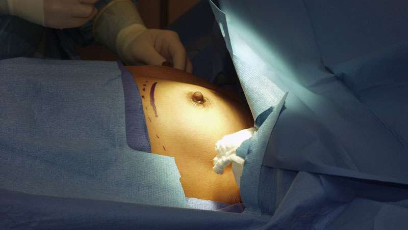 Registro Nacional de Implantes