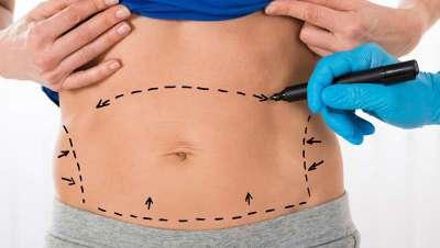 La mayor tasa de intrusismo en Cirugía Estética se da en las intervenciones de liposucción