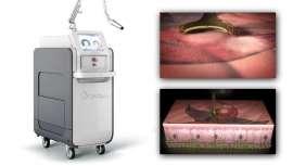 Tecnología patentada de picosegundos y láser dual para la eliminación de tatuajes, incluso los más contumaces, lesiones pigmentadas y rejuvenecimiento facial. Así es PicoWay de Syneron Candela