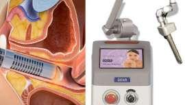 El láser ginecológico se convierte en el gran aliado de muchos de los efectos que la menopausia tiene en la mujer, así como en algunos efectos secundarios de los tratamientos de quimio y radioterapia