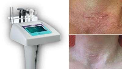 Cuando el cliente no puede esperar, se impone el uso de tecnología estética ¡de urgencia!