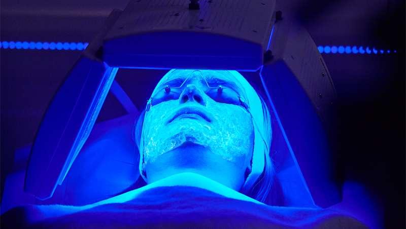 Kleresca desarrolla un método revolucionario para tratar el acné
