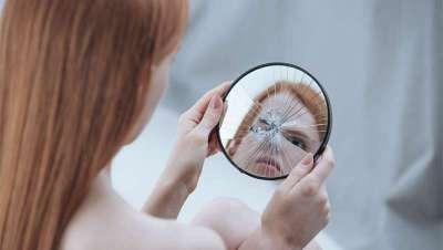 ¿Conoces la dismorfofobia o síndrome de distorsión de la propia imagen?