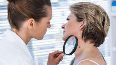 1 de cada 5 personas habrá desarrollado un cáncer de piel cuando llegue a los 70 años