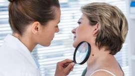 Los pacientes no suelen acudir al dermatólogo de forma rutinaria para hacerse un chequeo de lunares, sino que acude cuando la mancha o el lunar, que acaba siendo un cáncer de piel avanzado, es muy grande o les produce muchas molestias