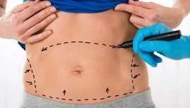 Un estudio publicado por American Society of Plastic Surgeons  (ASPS) demuestra que la abdominoplastia va mucho más allá de un vientre plano, incidiendo positivamente en una menor incontinencia y mejorando los dolores de la espalda