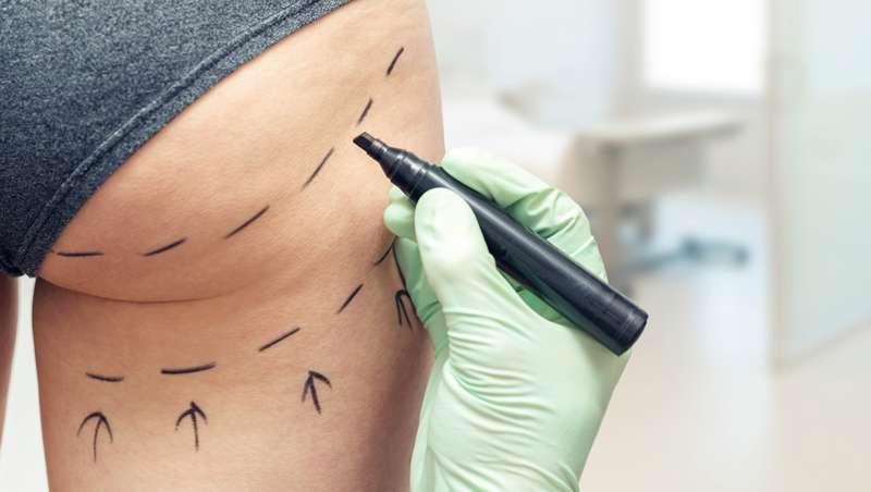 Expertos advierten de los riesgos asociados a la cirugía plástica de glúteos