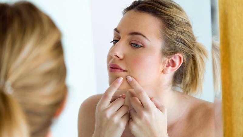 A vacina contra a acne, prestes a 'remover o grão'