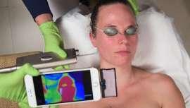 Maribel Yébenes presenta, en exclusiva en la península, este programa, con un láser fraccional con trenes de pulsos largos que rejuvenece la piel hasta su estado óptimo
