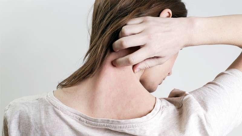 Un estudio sugiere un modelo de atención on-line para las personas con psoriasis