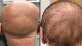 Una adolescente alopécica ha recuperado el pelo tras usar este fármaco contra la dermatitis que contiene dupilumab